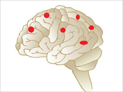 【腰痛トリビア】<br>腰痛は「脳の絵」を見ると治る?