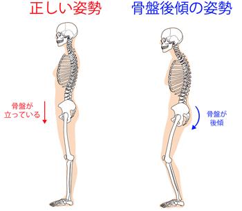 「骨盤後傾 猫背」の画像検索結果